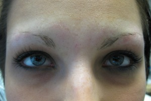 Brow Area before enhancement