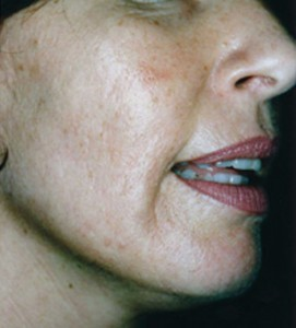 Skin after 3 Medical Micro Needling Treatments