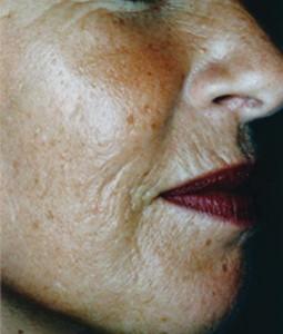 Environmentally damaged skin before Medical Micro Needling