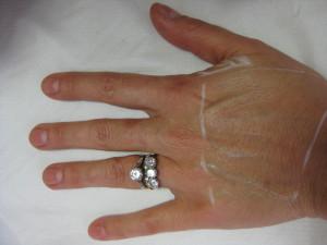 Left hand before filler