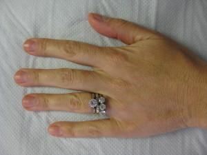 Left Hand After Filler