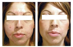 Before and After Isolaz Acne Treatments