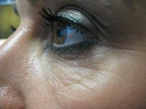 During Body Benefits Upper Face Rejuvenation Programme