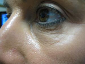 Before Body Benefits Upper Face Rejuvenation Programme