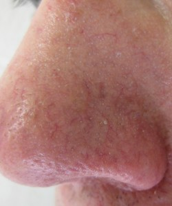Nose after Laser Treatments at Body Benefits