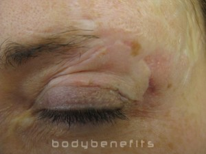Eye Lid, Eyebrow and skin before Scar Treatment
