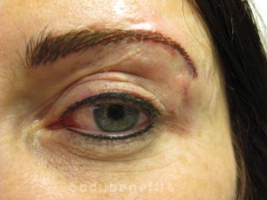 Eyelid and Eyebrow & Skin after Permanent Cosmetic Scar Camouflage