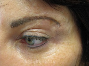 After Eyelid, Eyebrow & Skin Camouflage with Permanent Cosmetics