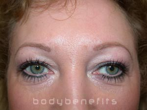 Eyes & Brows after Permanent Cosmetics
