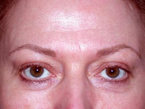 Brows after Permanent Cosmetic Enhancement
