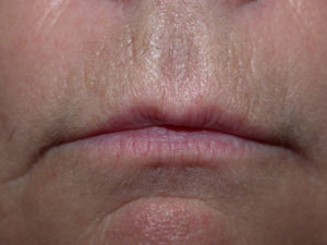 Lips before Permanent Colour