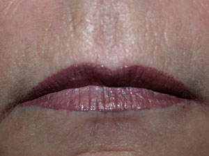 Lips after Permanent Cosmetic Colour