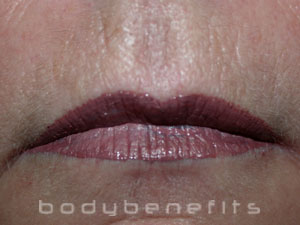 Lips after Permanent Lip Colour