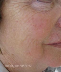 After Skin Boosting