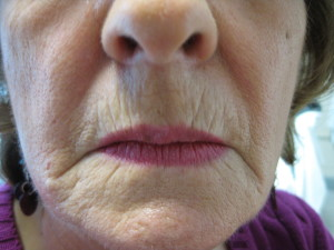 Lower Face before Filler at Body Benefits