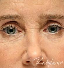 Eyes after Upper Face Enhancement with Dermal Filler