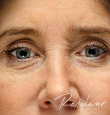 Eyes before Upper Face Enhancement with Dermal Filler
