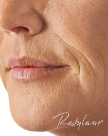 Lips, smokers lines and smile lines before Filler