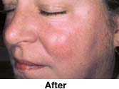 After IPL for Facial Redness