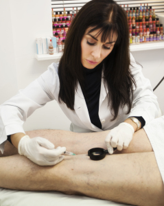 MicroSclerotherapy Treatment at Body Benefits