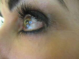 After Body Benefits Upper Face Rejuvenation Programme