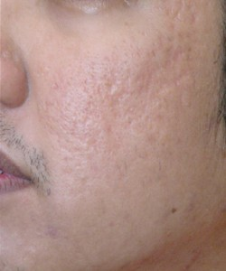 Acne Scarring after 3 Treatments