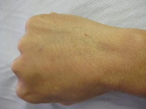 Right Fist After Dermal Filler