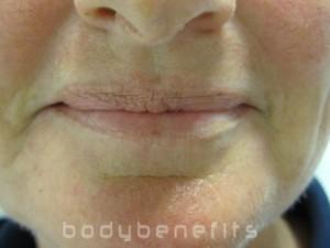 Uneven Lip Shape before Lip Liner