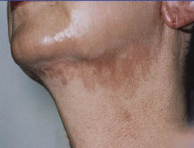 Pigmentation before treatment