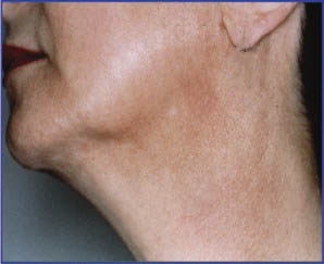 Neck Post Pigment Removal