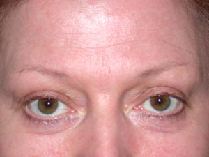 Brows before Permanent Cosmetics