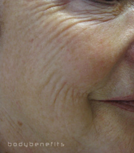 Before Skin Boosting