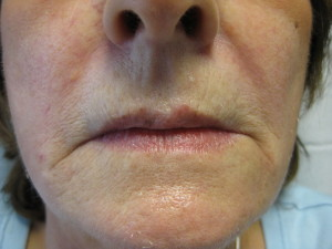 Lower Face after Filler