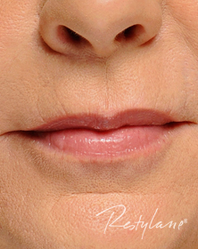Smokers lines and lip support after filler