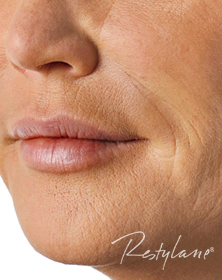Lips, Smokers Lines and Smile Lines after Dermal Filler