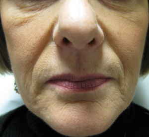 Face prior to commencing the Body Benefits Non-Surgical GALWAY Facelift