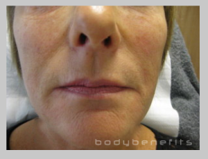 six months from commencement of Body Benefits Non-surgical GALWAY Facelift
