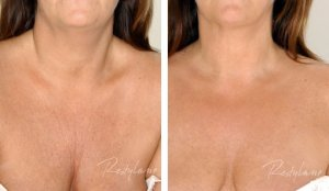 Decolletage Before & After with Restylane Skin Booster